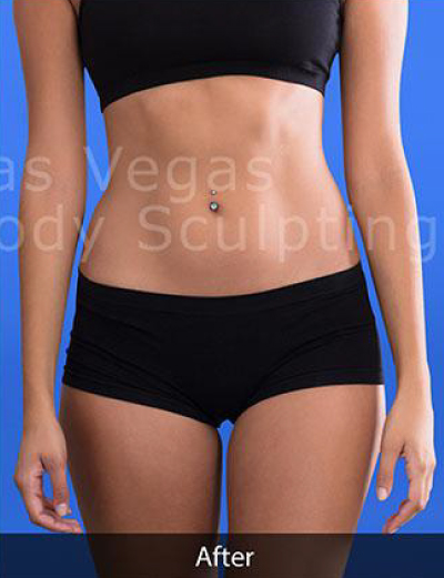 Liposuction Before & After Patient #344