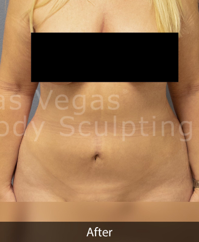 Liposuction Before & After Patient #373