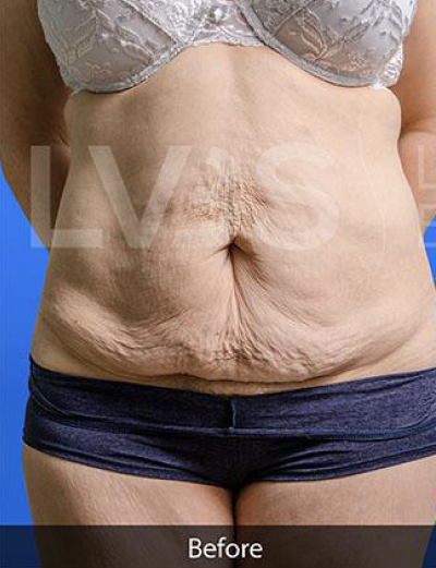 Liposuction Before & After Patient #360