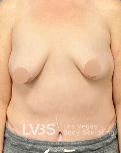 Breast Lift Before & After Patient #445