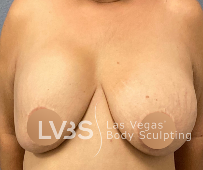 Breast Lift Before & After Patient #448